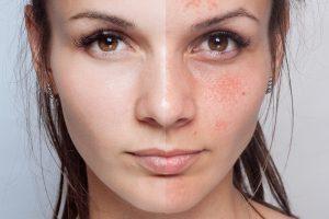 de Beautyspecialist - huidkliniek - chronische roodheid