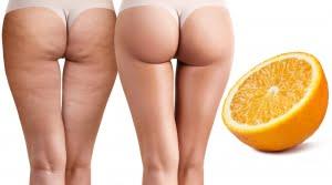 De beautyspecialist - huidkliniek - Bindweefselmassage lichaam cellulite